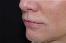 Lip Augmentation / Enhancement Before Photo by Landon Pryor, MD, FACS; Rockford, IL - Case 38228