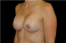 Breast Augmentation After Photo by Landon Pryor, MD, FACS; Rockford, IL - Case 38229