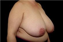 Liposuction Before Photo by Landon Pryor, MD, FACS; Rockford, IL - Case 38232