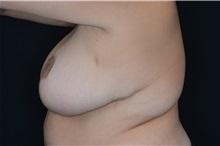 Liposuction After Photo by Landon Pryor, MD, FACS; Rockford, IL - Case 38232