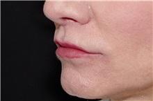 Lip Augmentation / Enhancement After Photo by Landon Pryor, MD, FACS; Rockford, IL - Case 38522