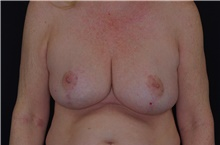 Breast Reduction After Photo by Landon Pryor, MD, FACS; Rockford, IL - Case 38841