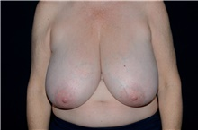 Breast Reduction Before Photo by Landon Pryor, MD, FACS; Rockford, IL - Case 38841