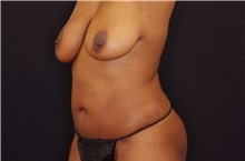 Body Contouring After Photo by Landon Pryor, MD, FACS; Rockford, IL - Case 38842