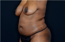 Body Contouring Before Photo by Landon Pryor, MD, FACS; Rockford, IL - Case 38842
