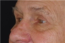 Eyelid Surgery After Photo by Landon Pryor, MD, FACS; Rockford, IL - Case 38844