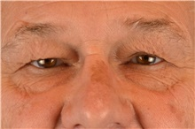 Eyelid Surgery Before Photo by Landon Pryor, MD, FACS; Rockford, IL - Case 38844