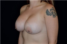 Breast Augmentation After Photo by Landon Pryor, MD, FACS; Rockford, IL - Case 38845