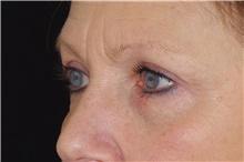 Eyelid Surgery After Photo by Landon Pryor, MD, FACS; Rockford, IL - Case 38926