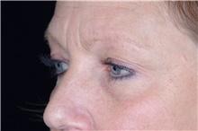 Eyelid Surgery Before Photo by Landon Pryor, MD, FACS; Rockford, IL - Case 38926
