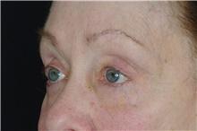 Eyelid Surgery After Photo by Landon Pryor, MD, FACS; Rockford, IL - Case 38965