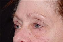 Eyelid Surgery Before Photo by Landon Pryor, MD, FACS; Rockford, IL - Case 38965