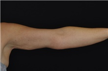 Arm Lift After Photo by Landon Pryor, MD, FACS; Rockford, IL - Case 39012