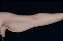 Arm Lift Before Photo by Landon Pryor, MD, FACS; Rockford, IL - Case 39012