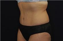 Tummy Tuck After Photo by Landon Pryor, MD, FACS; Rockford, IL - Case 39024