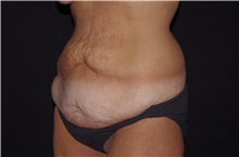 Tummy Tuck Before Photo by Landon Pryor, MD, FACS; Rockford, IL - Case 39024