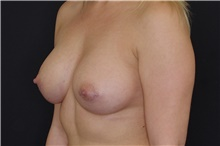 Breast Augmentation After Photo by Landon Pryor, MD, FACS; Rockford, IL - Case 39026
