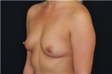 Breast Augmentation Before Photo by Landon Pryor, MD, FACS; Rockford, IL - Case 39026