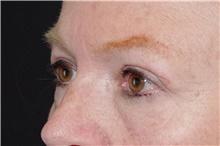 Eyelid Surgery After Photo by Landon Pryor, MD, FACS; Rockford, IL - Case 39034