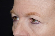 Eyelid Surgery Before Photo by Landon Pryor, MD, FACS; Rockford, IL - Case 39034