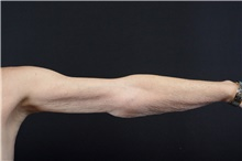 Arm Lift After Photo by Landon Pryor, MD, FACS; Rockford, IL - Case 39069