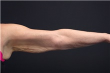 Arm Lift Before Photo by Landon Pryor, MD, FACS; Rockford, IL - Case 39069
