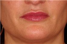Lip Augmentation / Enhancement After Photo by Landon Pryor, MD, FACS; Rockford, IL - Case 43030