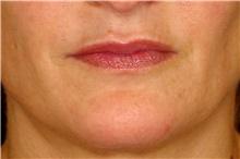 Lip Augmentation / Enhancement Before Photo by Landon Pryor, MD, FACS; Rockford, IL - Case 43030