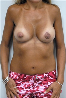 Breast Lift After Photo by Jonathan Hall, MD; Stoneham, MA - Case 23503