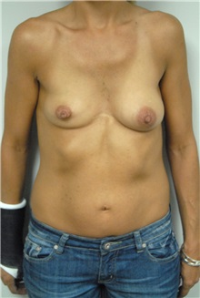 Breast Lift Before Photo by Jonathan Hall, MD; Stoneham, MA - Case 23503