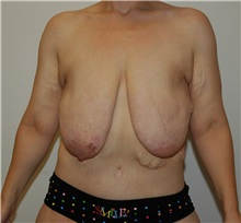 Body Contouring Before Photo by Jonathan Hall, MD; Stoneham, MA - Case 23504
