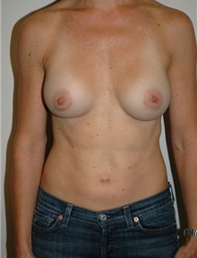 Breast Augmentation After Photo by Jonathan Hall, MD; Stoneham, MA - Case 23505