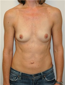 Breast Augmentation Before Photo by Jonathan Hall, MD; Stoneham, MA - Case 23505