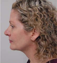 Rhinoplasty After Photo by Jonathan Hall, MD; Stoneham, MA - Case 23506