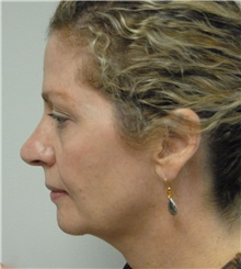 Rhinoplasty Before Photo by Jonathan Hall, MD; Stoneham, MA - Case 23506