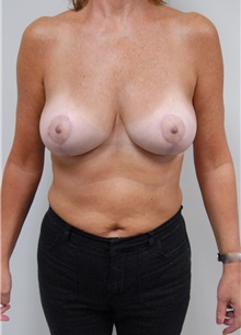 Breast Lift After Photo by Jonathan Hall, MD; Stoneham, MA - Case 23508