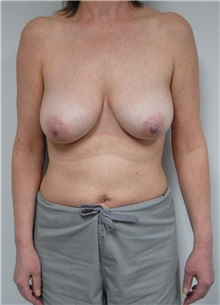 Breast Lift Before Photo by Jonathan Hall, MD; Stoneham, MA - Case 23508