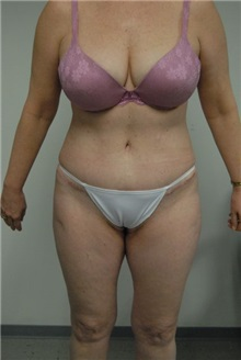 Tummy Tuck After Photo by Jonathan Hall, MD; Stoneham, MA - Case 23516