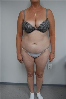 Tummy Tuck Before Photo by Jonathan Hall, MD; Stoneham, MA - Case 23516