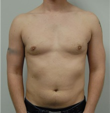 Male Breast Reduction After Photo by Jonathan Hall, MD; Stoneham, MA - Case 23521