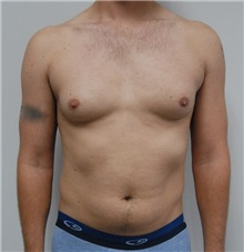 Male Breast Reduction Before Photo by Jonathan Hall, MD; Stoneham, MA - Case 23521