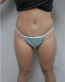 Tummy Tuck After Photo by Jonathan Hall, MD; Stoneham, MA - Case 23522