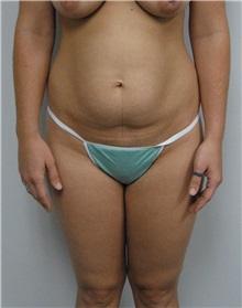 Tummy Tuck Before Photo by Jonathan Hall, MD; Stoneham, MA - Case 23522