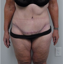 Body Contouring After Photo by Jonathan Hall, MD; Stoneham, MA - Case 23525