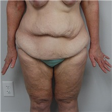 Body Contouring Before Photo by Jonathan Hall, MD; Stoneham, MA - Case 23525