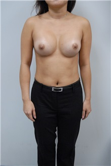 Breast Augmentation After Photo by Jonathan Hall, MD; Stoneham, MA - Case 23531