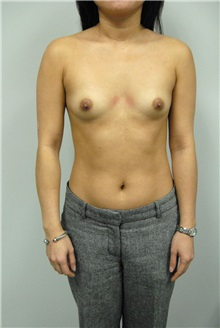 Breast Augmentation Before Photo by Jonathan Hall, MD; Stoneham, MA - Case 23531