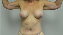 Body Contouring After Photo by Jonathan Hall, MD; Stoneham, MA - Case 24080