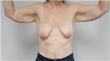 Body Contouring Before Photo by Jonathan Hall, MD; Stoneham, MA - Case 24080