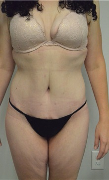 Body Contouring After Photo by Jonathan Hall, MD; Stoneham, MA - Case 26902